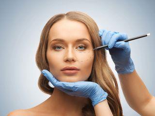 Relleno o implantes de ojeras y pómulos