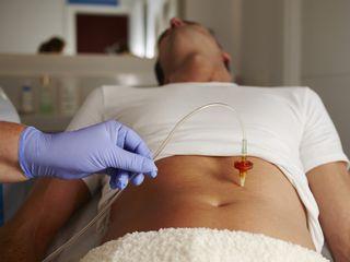 ¿Grasa localizada? La carboxiterapia, ¡el mejor tratamiento!