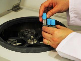 Plasma rico en Factores de Crecimeinto:Centrifugación