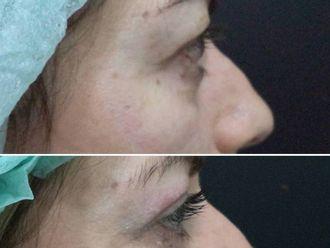 Rejuvenecimiento facial-604065