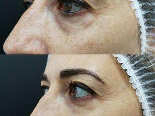 Antes y después relleno ojeras