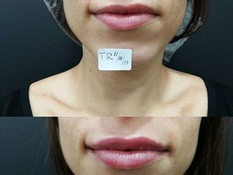 Aumento labios-604383