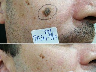 Eliminación de lesión cutánea facial