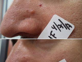Antes y después tratamiento verrugas