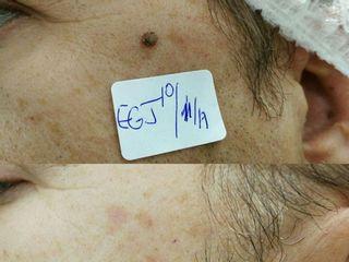 Antes y después Eliminación de lesión cutánea facial