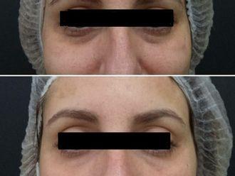 Medicina estética-610358