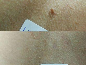 Dermatología-615250