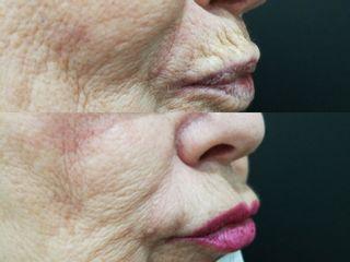 Antes y después Tratamiento de código de barras con ácido hialurónico