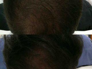 Antes y después Tratamiento para la alopcia con Plasma Rico en Plaquetas