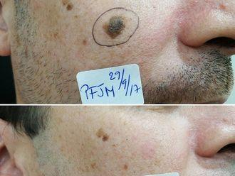 Dermatología-638693