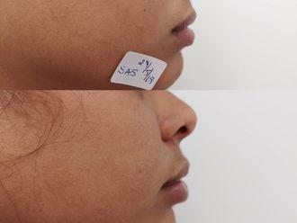 Aumento labios-638695