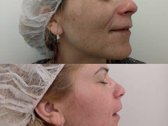 Tratamiento antimanchas - 638696
