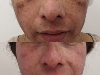 Tratamiento antimanchas - 638703