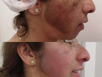 Tratamiento antimanchas - 638704