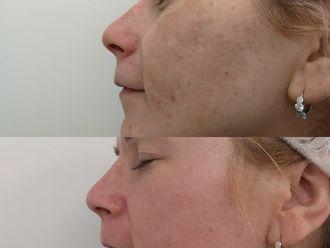 Dermatología-638706