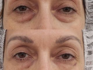 Antes y después tratamiento ojeras con hialurónico