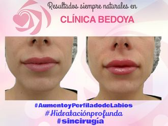 Aumento labios-644923