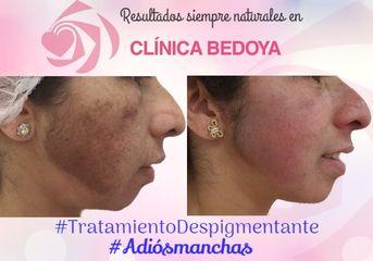 Antes y después Tratamiento despigmentante (tras 2 meses)