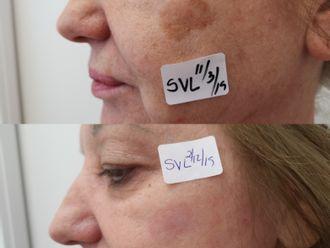 Tratamiento antimanchas - 646959