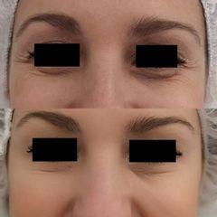 Antes y después Tratamiento antiarrugas con botox