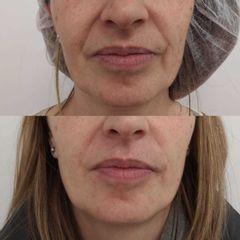 Antes y después Tratamiento nasolabial con ácido hialurónico