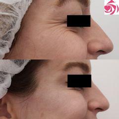 Antes y después Tratamiento patas de gallo con botox