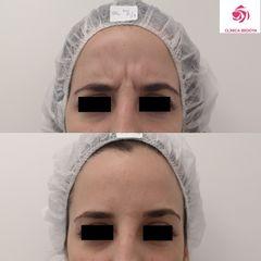 Antes y después Tratamiento entrecejo con botox
