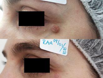 Dermatología-647224