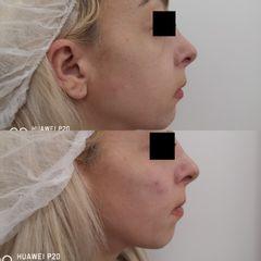 Antes y después Aumento pómulos y nasogenianos