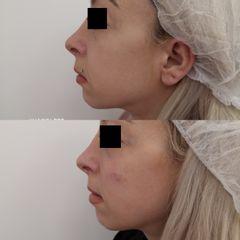 Antes y después Relleno nasogenianos y pómulos