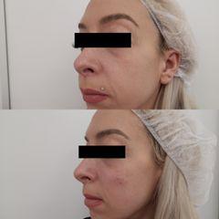 Antes y después Relleno pómulos y nasogenianos