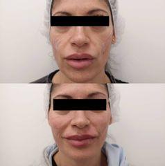 Antes y después Relleno de mejillas, labios y pómulos