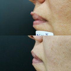 Antes y después Eliminación de lesión cutánea sin cicatriz