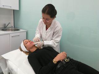 Tratamiento mesoterapia facial