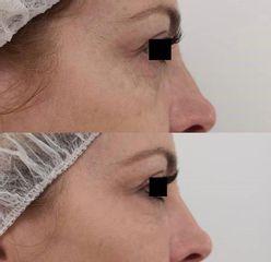 Relleno de ojeras con ácido hialurónico, antes y después