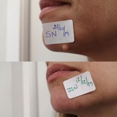 Antes y después Eliminación de lesión cutánea