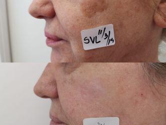 Tratamiento antimanchas-662995