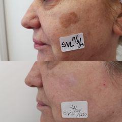 Antes y después Eliminación lentigo con Plexr - Clínica Bedoya
