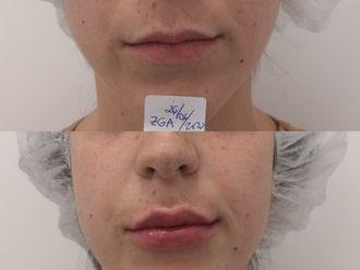Aumento labios-663066