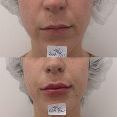 Antes y después Aumento labios con ácido hialurónico - Clínica Bedoya