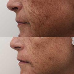Antes y después Relleno nasolabial - Clínica Bedoya