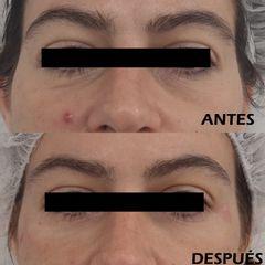 Antes y después Tratamiento ojeras con ácido hialurónico - Clínica Bedoya