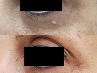 Dermatología-689774