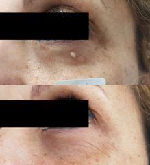 Antes y después Eliminación de verruga