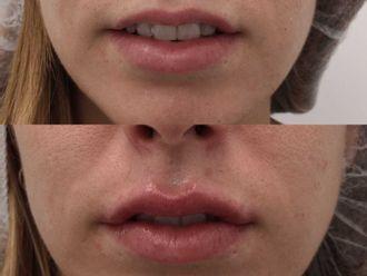 Aumento labios-695154