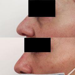 Antes y después Eliminación bolsas y ojeras - Clínica Bedoya
