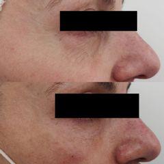 Antes y después Tratamiento bolsas y ojeras - Clínica Bedoya