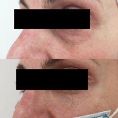 Antes y después Tratamiento bolsas y ojeras con ácido hialurónico - Clínica Bedoya