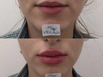 Aumento labios-698252