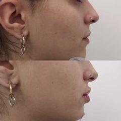Antes y después Aumento de labios con ácido hialurónico - Clínica Bedoya